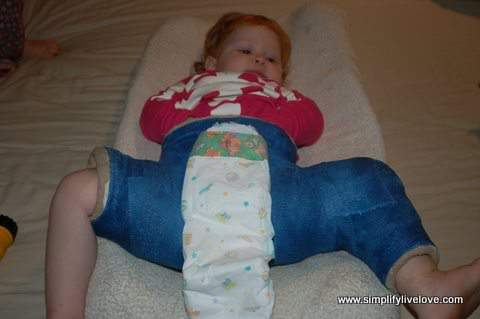 diapering with a hip spica cast